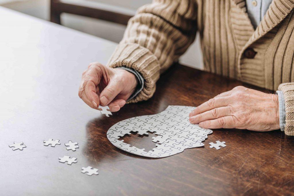 Alzheimer e cervello